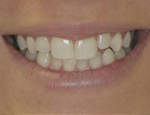 Before Veneers